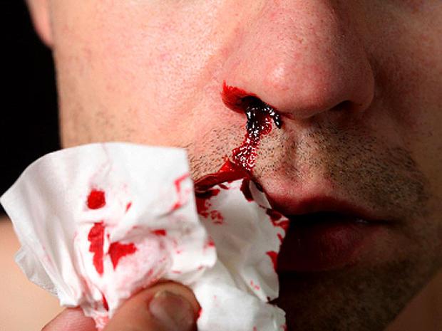 bloody_nose.jpg